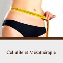 Cellulite et Mésothérapie