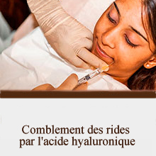 Comblement des rides par l'acide hyaluronique